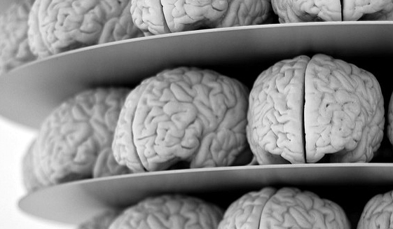 brains on shelf